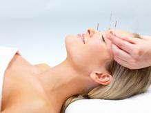 Anti Aging Facial Acupuncture